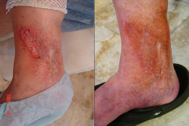 http://sakacamprung.blogspot.com/2017/05/obat-luka-borok-di-kaki-karena-alergi.html