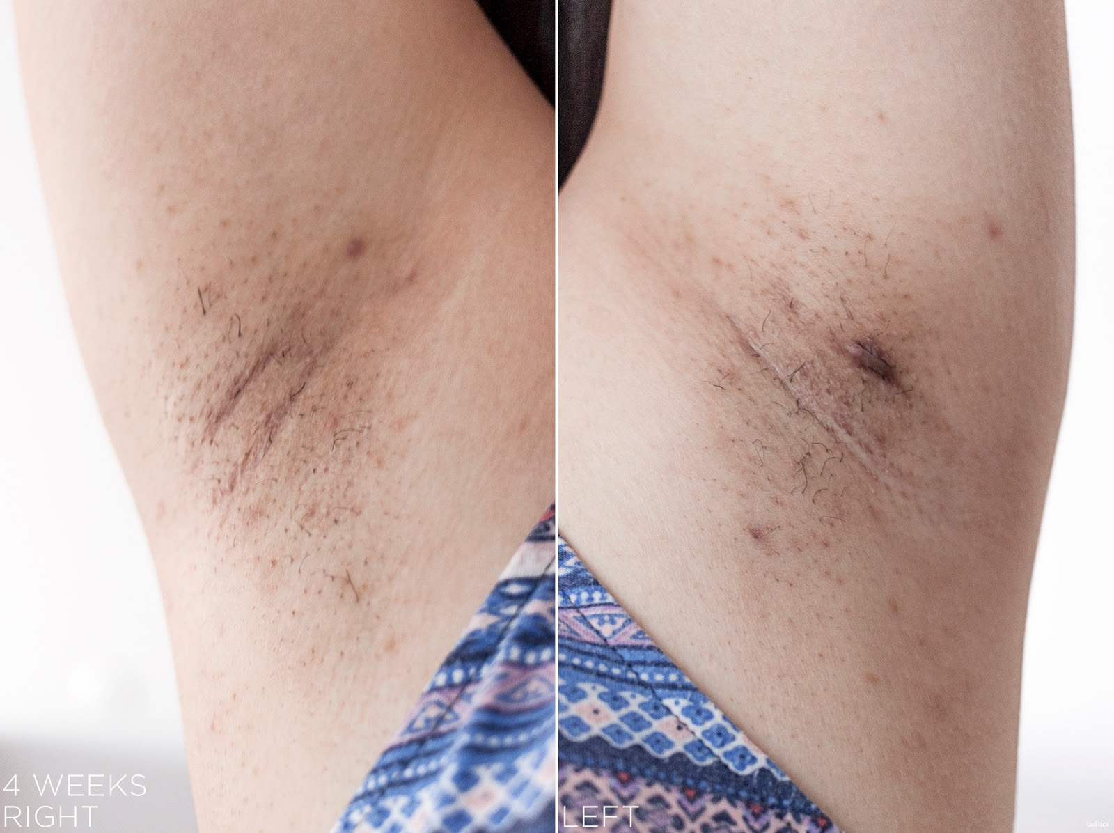 tria Hair Removal Laser Armpits Hair 4 Weeks, 1 month