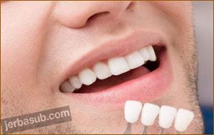 اسعار تركيب الاسنان في المهيدب