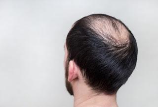 Saç Dökülmesini Önlemek İçin 10 Basit Öneri