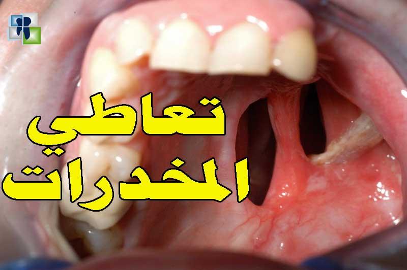 أثر تعاطي المخدرات على الأسنان