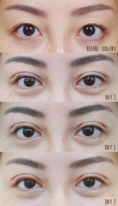 Non-incisional Double Eyelid Surgery in Singapore - Skinnyshortcake