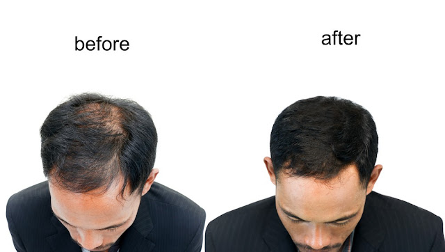 Kaya Clinic Hair Transplant