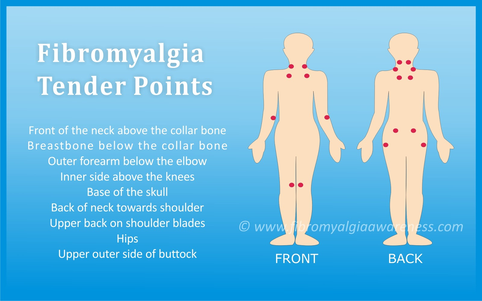 18 tender points of fibromyalgia diagram digital power meter wiring awareness information tips support patient stories poster