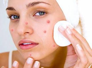 Ce que les boutons de votre visage révèlent sur votre santé !