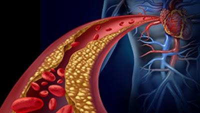 Cara Mengobati Penyakit Trigliserida