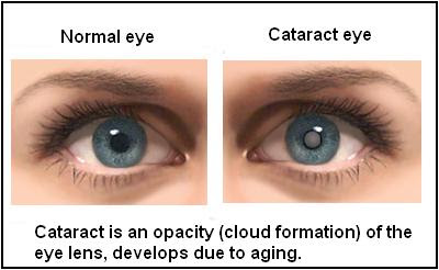 http://www.amrithospital.com/specialities/ophthalmology/cataract/
