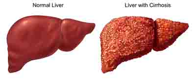 What are Signs and Symptoms of Ovarian Cancer