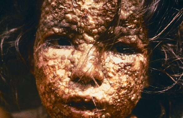 Le principali malattie infettive pericolose che l'uomo ha battuto