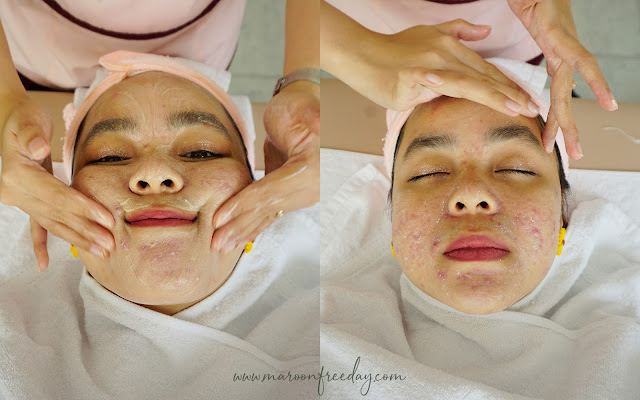 Review Kusuma Beauty Clinic Pondok Indah