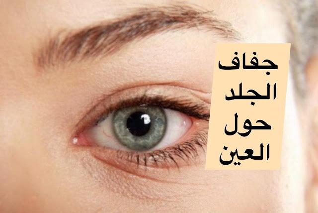 جفاف الجلد حول العين: إليك الأسباب وطرق العلاج