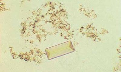 Triple phosphates crystal and amorphous phosphates (200x)