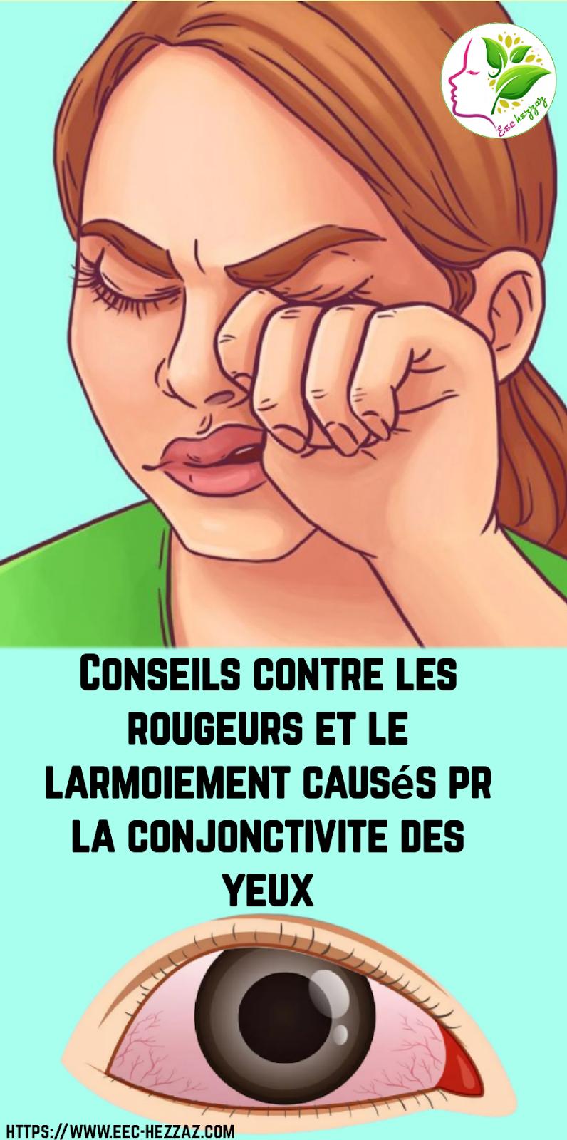 Conseils contre les rougeurs et le larmoiement causés pr la conjonctivite des yeux