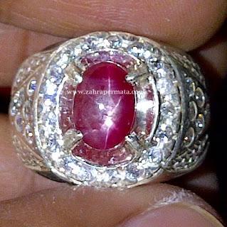 Cincin Batu Permata Ruby Star Burma
