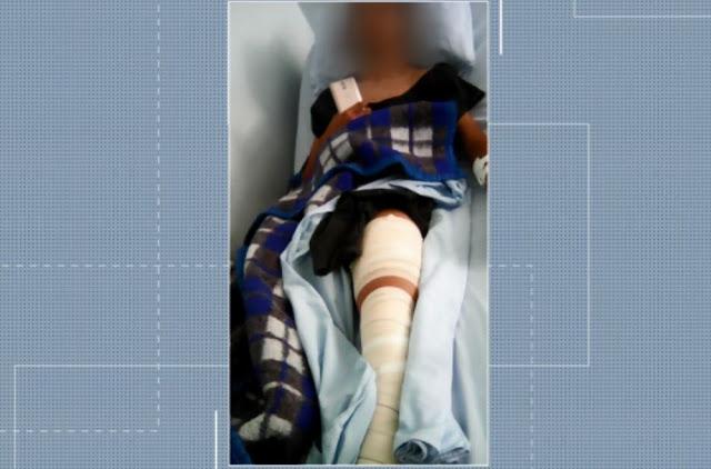 Família contesta ação da PM que terminou com filho adolescente baleado em Três Corações (Foto: Reprodução/EPTV)
