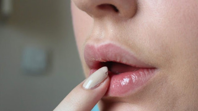 tips meringankan bibir gelap