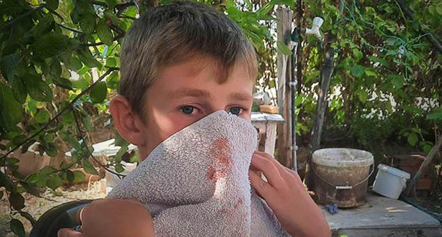 Група старијих Шиптара без икаквог повода напала је дванаестогодишњег српског дечака Михајла С. данас око 14 сати у центру Косовске Каменице.  #Šiptari #Napad #PetarPetković #Kosovo #Metohija #KMnovine #vesti