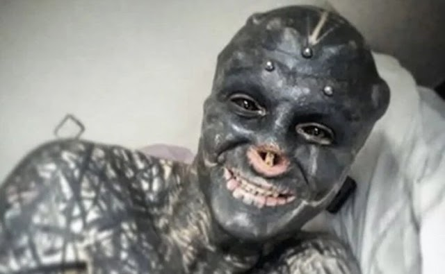Hombre se extirpa la nariz y las orejas para parecerse a un extraterrestre (fotos)