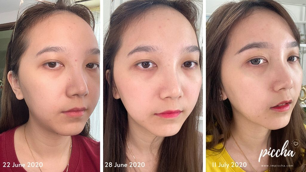 Before - After  Zlota Glow Serum