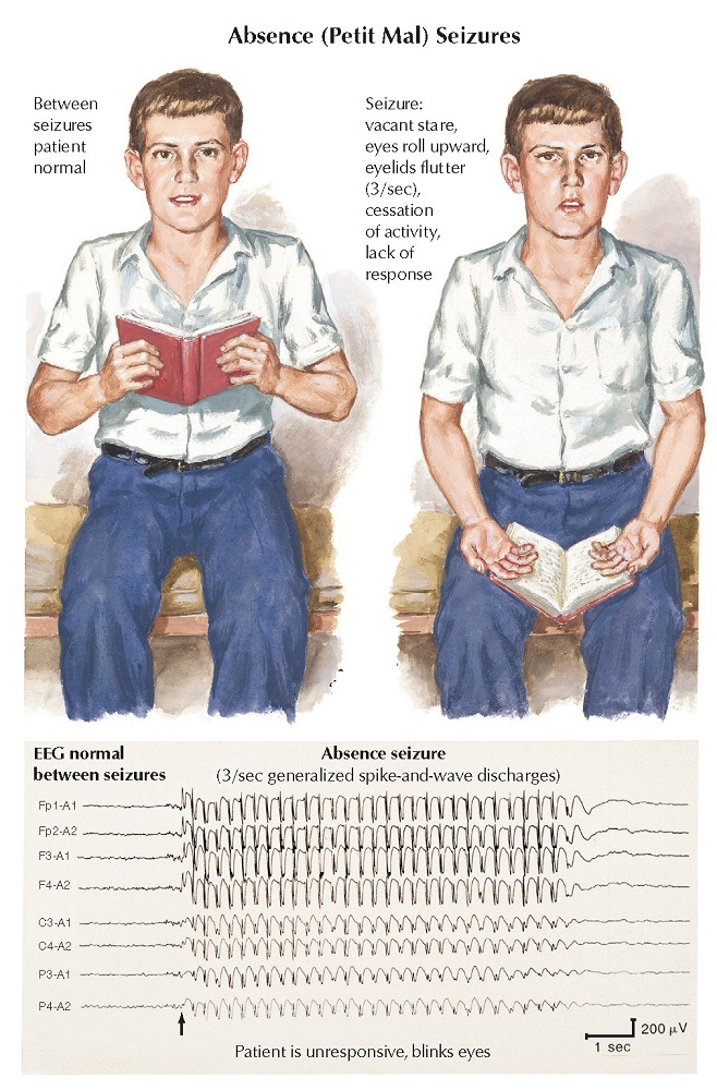 Epilepsy: Partial and Absence Seizures