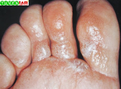 Fig. 2.8 Vesicular contact allergic dermatitis from shoe materials (leather, rubber, or glue)