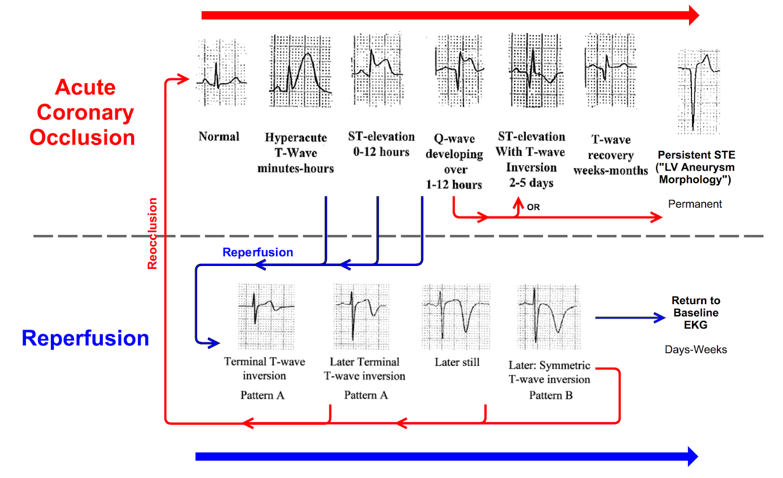 Dr Smith S Ecg Blog Teaching Images