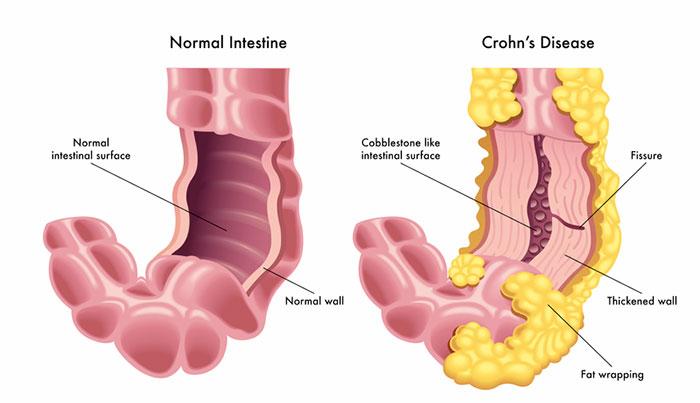 Penyakit Crohn