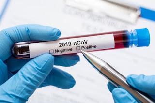 teste para coronavírus