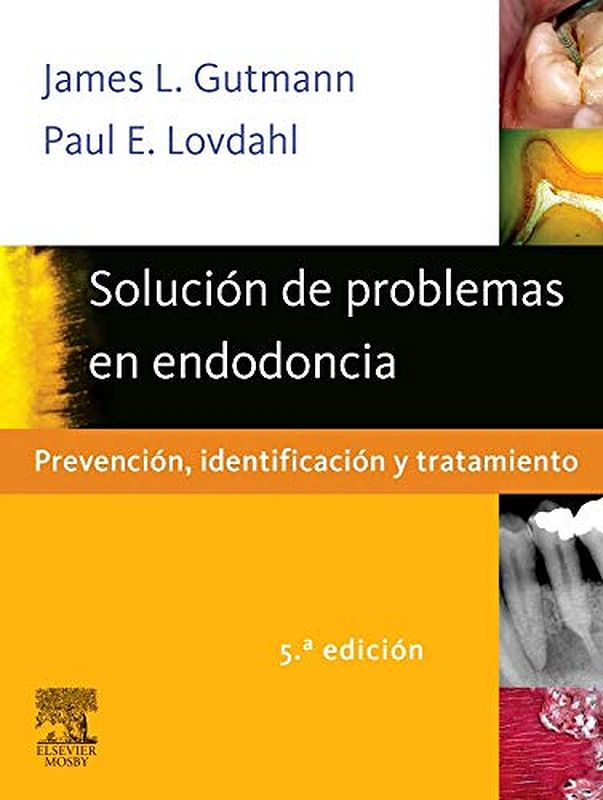 LIBRO DE ODONTOLOGÍA: Solución de problemas en Endodoncia - James Gutmann