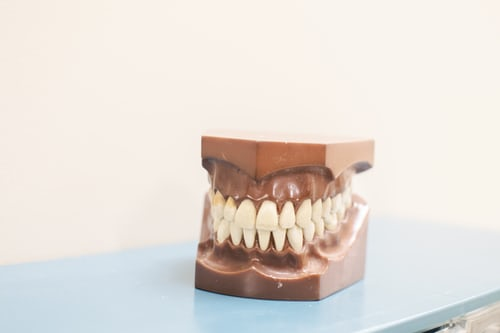 Bruxism: Its Important Causes and Symptoms