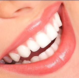 Foto Gigi Cantik Harga Paket Perawatan Gigi Crown dan Bridges Dental Aesthetic