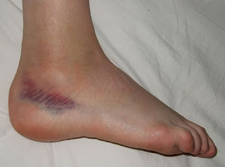 bruise on ankle