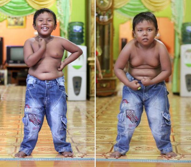 Aldi Rizal Sang Bocah Perokok 40 Batang Perhari, Beginilah Kondisinya Sekarang Ini