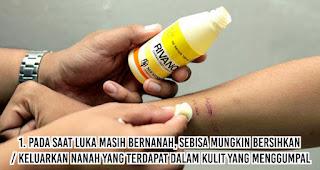 Pada saat luka masih bernanah, sebisa mungkin bersihkan / keluarkan nanah yang terdapat dalam kulit yang menggumpal