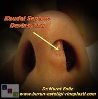 Kaudal septal deviasyonu olan hastalarda deviasyon ameliyatı ile birlikte burun ucu kaldırma işlemi - Nazal septum deviasyonu - Kaudal Septum Deviasyonu - Anterior Septal Dislokasyon - Kaudal Septoplasti - Kaudal Septum Deviasyonu Tedavisi - Burun ucu kaldırma - Eksternal strut greft yöntemi - Eksternal strut greft