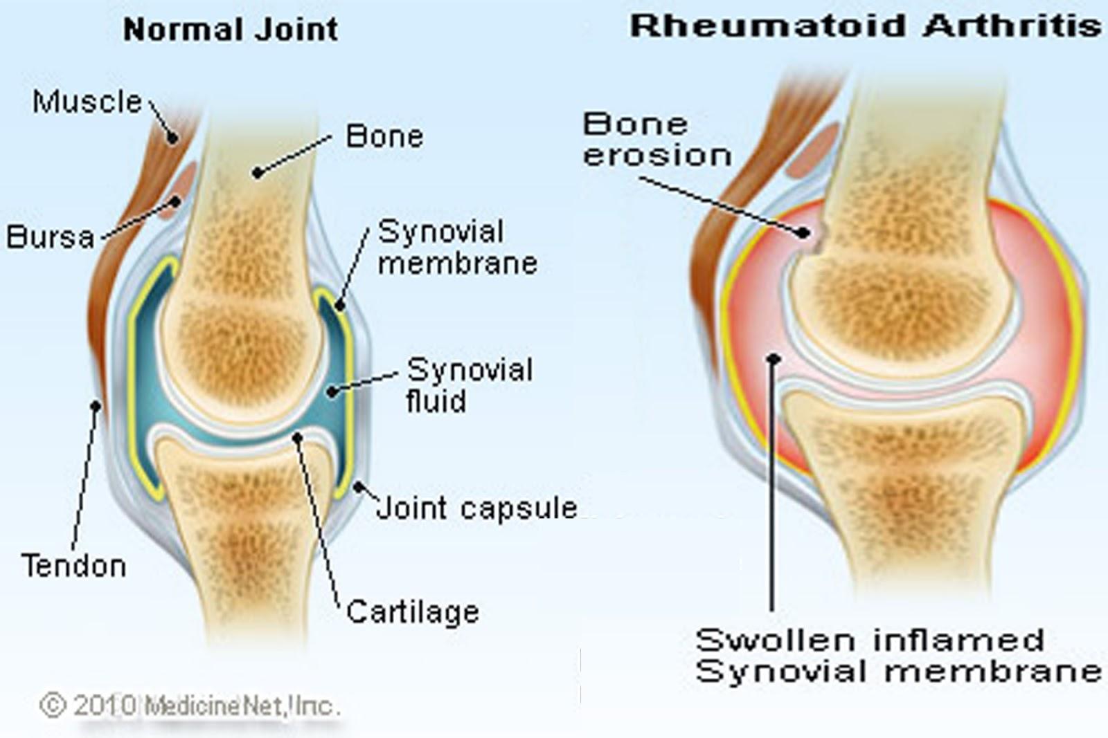 Image result for arthritis medications