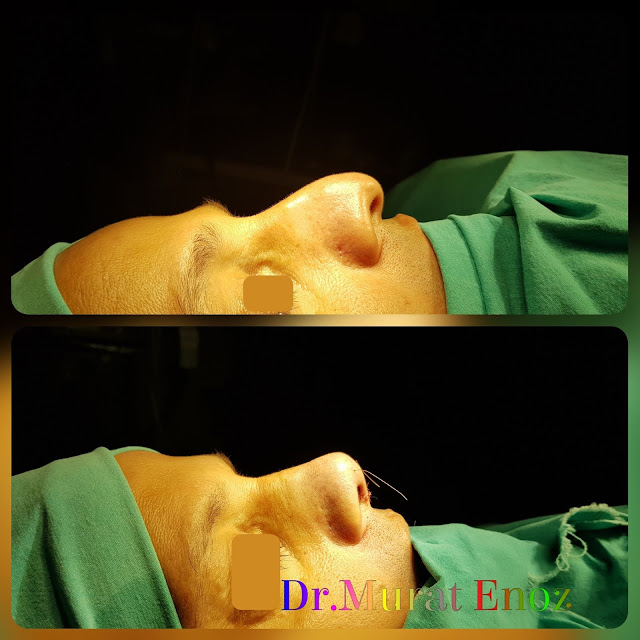 Droopy Nose Tip Aesthetic in Istanbul,Nose Tip Plasty in Istanbul, Ptotic Nasal Tip, Nose Tip Lifting,