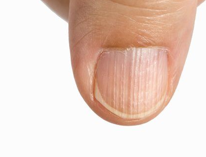 #Edges On Fingernails, 5 Amazing Home Remedies You Must Know#Health