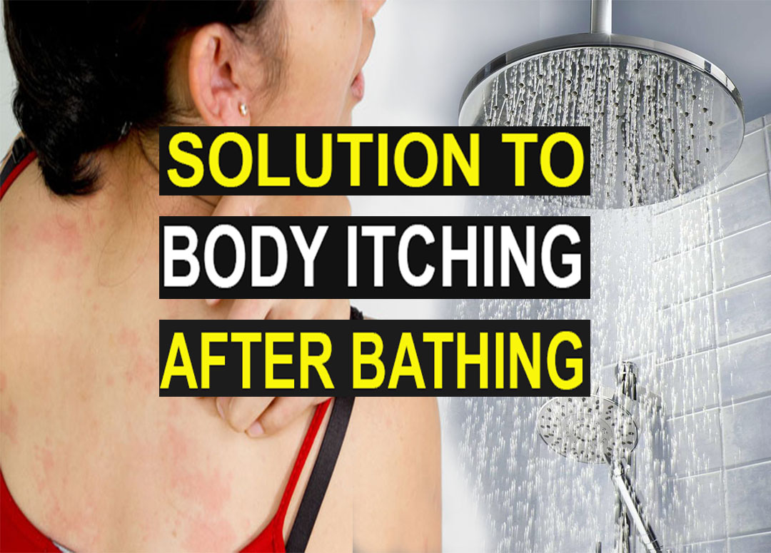 Solution to body itching after having a bath