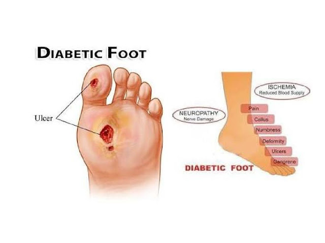 Diabetic Foot Spectrum