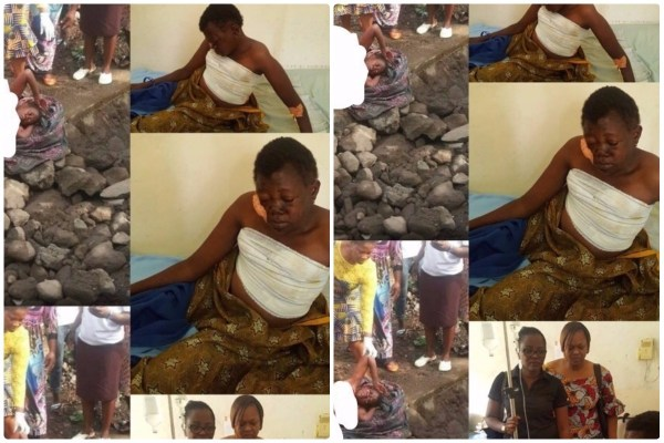 Woman Saved After Bosom And Vulva Were Reaped  By Ritualists
