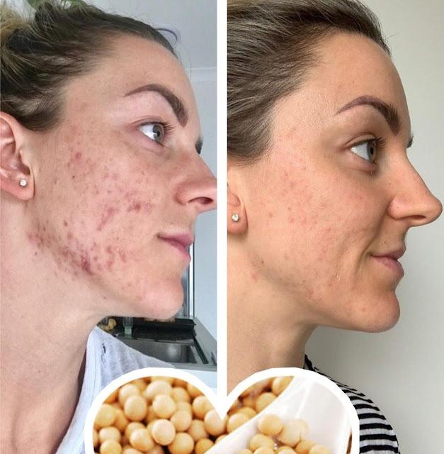 DIY masque au soja pour supprimer les taches brunes sur le visage en 15 jours