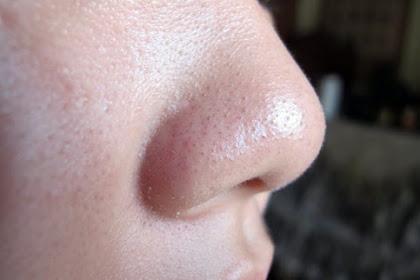Cara Mudah Menghilangkan Komedo Dengan Pasta Gigi dan Garam
