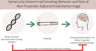 喫煙とくも膜下出血のメンデルランダム化解析