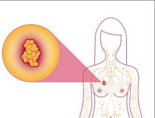 Breast Cancer Research and Support Fund Is Helping to Find the Latest Finding about Cancer