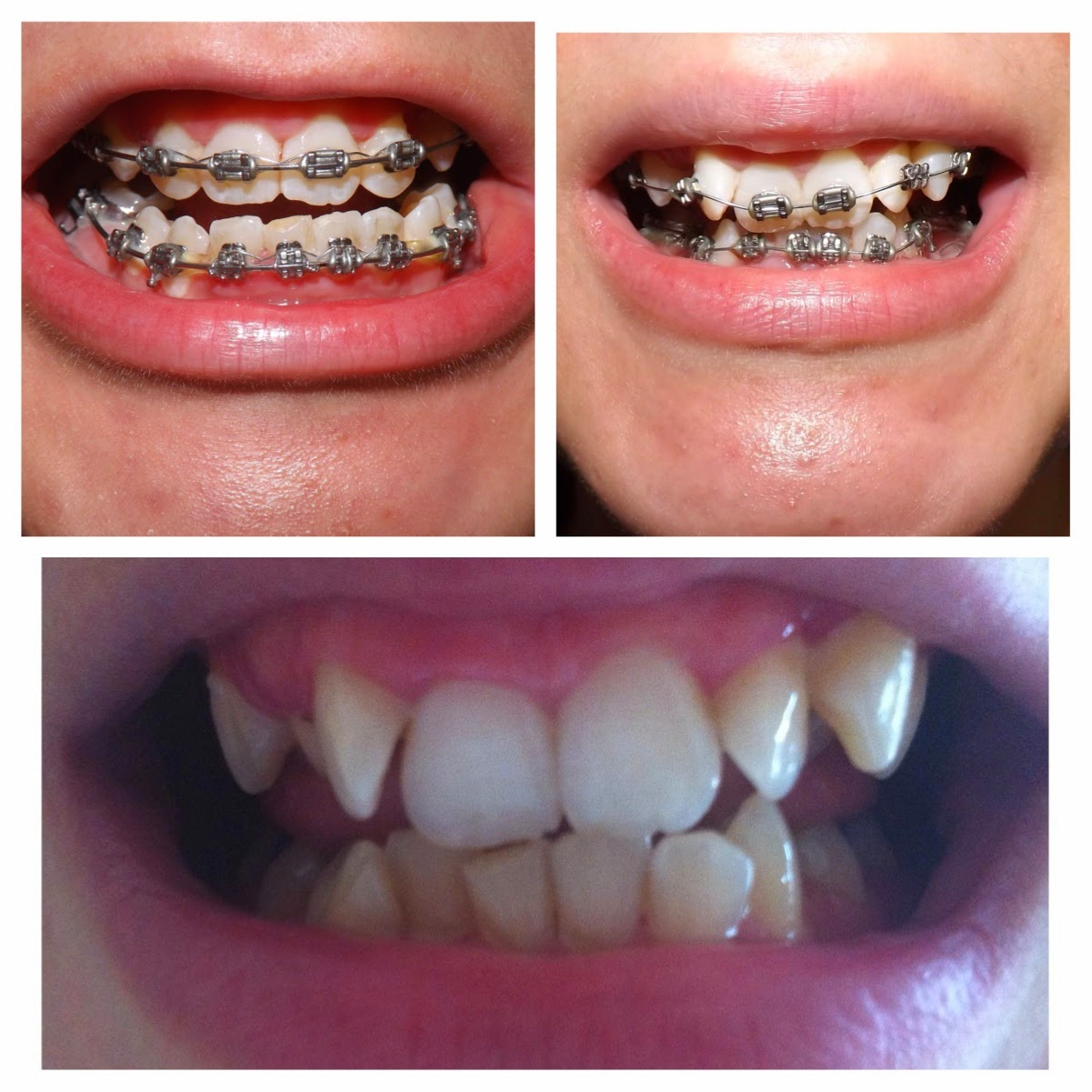 They do recommend not to get your teeth whitened straight after having a  brace but I will definitely be looking into it, just so I can truly have  the ...