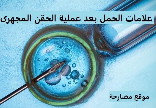 علامات الحمل بعد عملية الحقن المجهرى