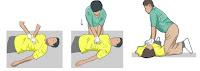 Langkah-langkah melakukan RJP pada korban kecelakaan