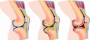 خشونة الركبة والمفاصل بالاعشاب