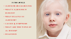 Symptoms of Albinism | What are The Types of Albinism ?